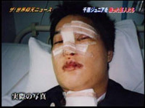 千原ジュニア事故当時の写真。 鼻に大きな傷を負っていることが分かる。